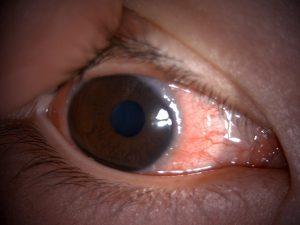 春季カタル 眼球型